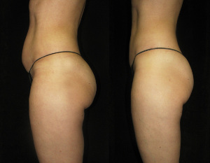 Lipo Light Is The Only Technology That Has Two Spectrums Of Light That  Eliminate Fat And ...